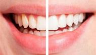 7 thực phẩm làm thay đổi màu răng bạn