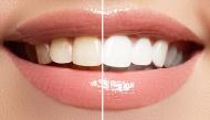 Những cách làm trắng răng tại nhà, đơn giản mà hiệu quả tức thì