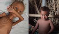 Cậu bé Yemen từng suýt chết vì đói gây chấn động thế giới bây giờ ra sao?