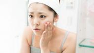 Đây chính là những hậu quả mà làn da sẽ gánh chịu nếu bạn không dưỡng ẩm