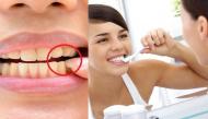 Những vấn đề sức khỏe răng miệng cực kì cần thiết mà không phải ai cũng hiểu rõ