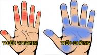 Chớ nên xem thường khi bàn tay mình đột nhiên bị tê buốt