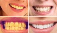 Cách giúp bạn loại sạch mảng ố vàng và cao răng cực hiệu quả