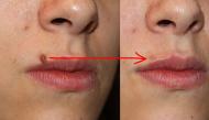 Cách tẩy mụn ruồi kém duyên trên da an toàn, hiệu quả chỉ với vài ngàn đồng