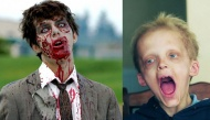 """Những căn bệnh quái lạ ngỡ như phim kinh dị khiến y học """"bó tay"""""""