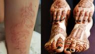 Xăm và dán decal henna - mốt của giới trẻ tưởng vô hại nhưng lại nguy hiểm khôn lường