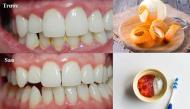 Cứ dùng 7 nguyên liệu dễ kiếm này, cả đời không cần đi nha sĩ lấy cao răng