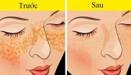 Mụn, nám da, vết thâm hay nếp nhăn đều bị đánh bay bởi những mẹo đơn giản, dễ làm
