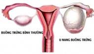 Những dấu hiệu cảnh báo bệnh đa nang buồng trứng mà chị em phụ nữ cần phải lưu ý