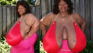 Người phụ nữ đã lập kỷ lục thế giới và kiếm cả triệu đô nhờ bộ ngực nặng tới... 50kg vì bệnh lạ