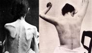 Những hình ảnh tại một nhà thương điên vào thế kỷ 19 ở Pháp khiến ai xem qua cũng phải rùng mình