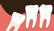 Tất tần tật các vấn đề về răng khôn mà ai cũng nên xem qua để biết khi nào nên nhổ