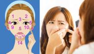Nhìn 6 vị trí mọc mụn trứng cá trên mặt để biết bộ phận nào trong cơ thể bạn đang gặp rắc rối