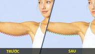 Đánh tan mỡ bắp tay vĩnh viễn nhờ những bài tập siêu đơn giản