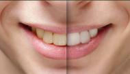 Ăn 6 thứ này thường xuyên thì có dốc công tẩy trắng răng cũng vô ích