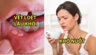7 dấu hiệu phổ biến của bệnh ung thư miệng mà nhiều người hay bỏ qua