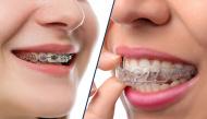 Coi chừng công cốc nếu niềng răng mà không biết đến những cách chăm sóc này