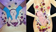 """Bộ ảnh vinh danh các bà mẹ sinh mổ đập tan suy nghĩ thiển cận: """"Sinh mổ là không biết đẻ"""""""