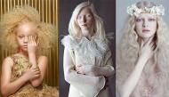Những người mẫu bạch tạng đã vượt qua kỳ thị, chứng minh vẻ đẹp không ai khác có thể đạt tới