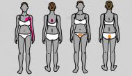 9 vị trí đau trên cơ thể bạn đừng chủ quan vì có thể đe dọa đến tính mạng