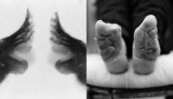 """""""Bó chân gót sen"""" - cái giá quá đắt để trả cho """"cái đẹp"""": đôi chân rỉ máu và biến dạng cả đời"""