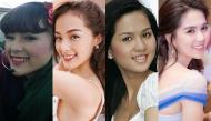 Nhan sắc của mỹ nhân Việt trước và sau khi chỉnh răng khiến công chúng ngỡ ngàng
