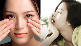 Quầng thâm mắt: Nếu không cảnh báo thiếu máu cũng là căng thẳng cực độ, bạn đừng chủ quan