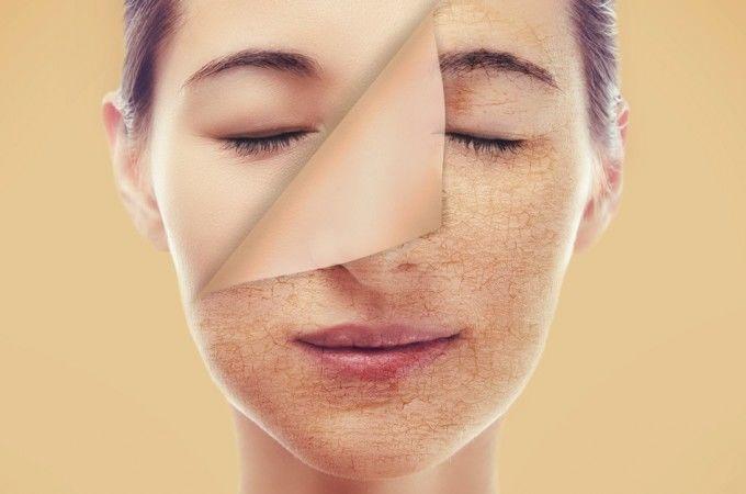 Chia sẻ cách chăm sóc da khô vào mùa đông