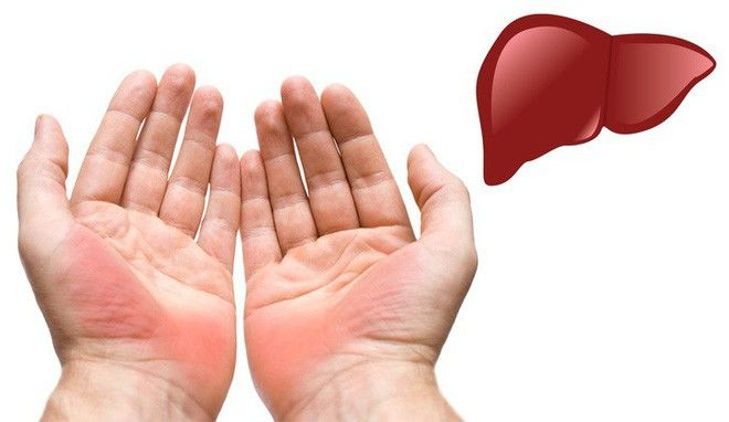Những dấu hiệu cảnh báo bệnh nguy hiểm được biểu hiện qua đôi bàn tay
