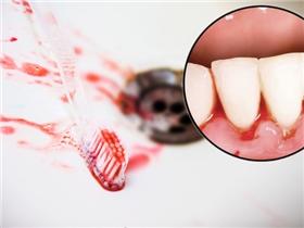 Đừng để ân hận muộn màng vì lơ là dấu hiệu chảy máu chân răng