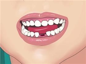 Răng rụng sớm chỉ vì 7 thói quen đánh răng nguy hại này