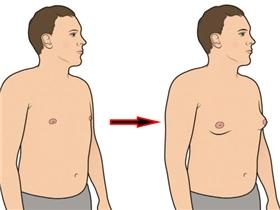 Đàn ông ngực phẳng bỗng một ngày nhô cao, nở nang là bệnh gì?