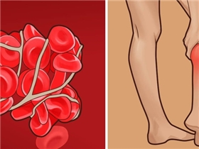 7 dấu hiệu âm thầm của hiện tượng cục máu đông gây chết người