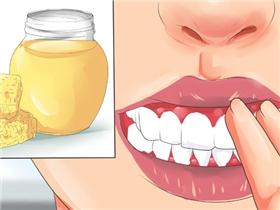 8 cách giúp nướu răng dù sưng cách mấy cũng bớt đau ngay