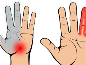 Nếu bàn tay đột nhiên tê ở các điểm này thì bạn chớ nên xem thường