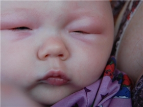 10 triệu chứng bệnh ở trẻ bố mẹ nên thuộc nằm lòng