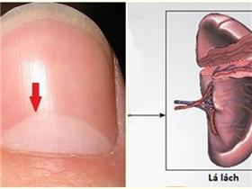 Bật mí tình trạng sức khỏe thông qua hình bán nguyệt trên móng tay