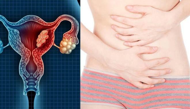4 dấu hiệu ung thư buồng trứng không quá rõ ràng nên chị em thường chủ quan không để ý
