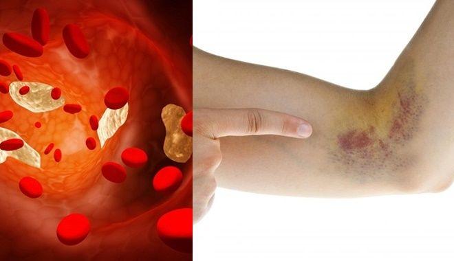 Dấu hiệu báo bệnh nguy hiểm khi vết bầm tím xuất hiện trên da
