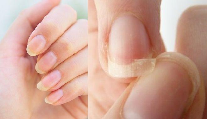 Bắt bệnh nguy hiểm ở cơ thể con người qua dấu hiệu trên móng tay