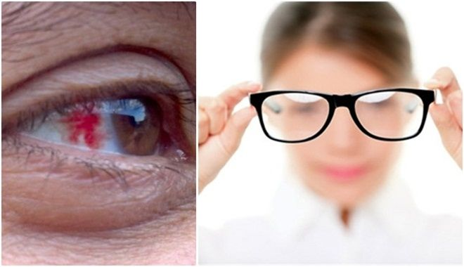 Những dấu hiệu ở đôi mắt báo hiệu sức khỏe của bạn đang trong tình trạng bất ổn