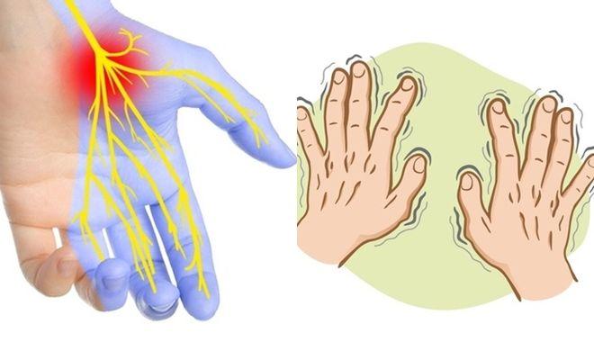 Những căn bệnh nguy hiểm được phát hiện sớm thông qua dấu hiệu ở bàn tay