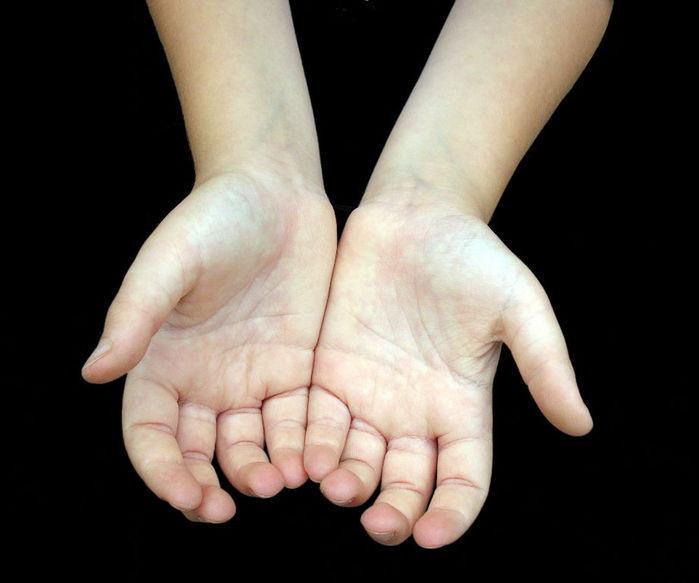 Dấu hiệu tay cho biết nguy cơ mắc bệnh của dạ dày: Lòng tay đỏ rát
