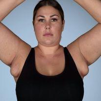Chuyện lạ: Người phụ nữ có 4 ngực phải cầu cứu bác sĩ cắt bớt