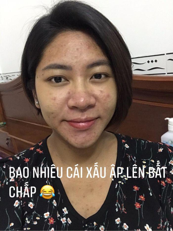 Mỹ nhân Việt tan nát khi mang bầu: Đặng Thu Thảo mụn chi chít